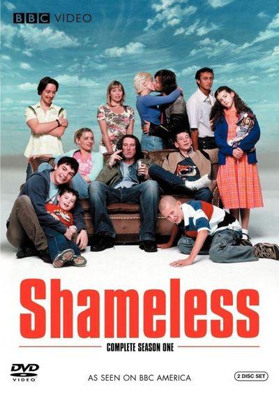 Shameless- Die Serie